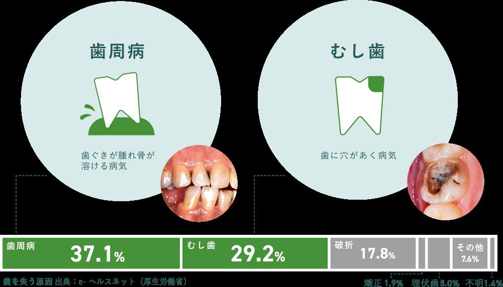 歯周病 37.1% 虫歯 29.2% 破折 17.8% 矯正1.9% 埋伏歯 5.0% その他 7.6% 不明 1.4%